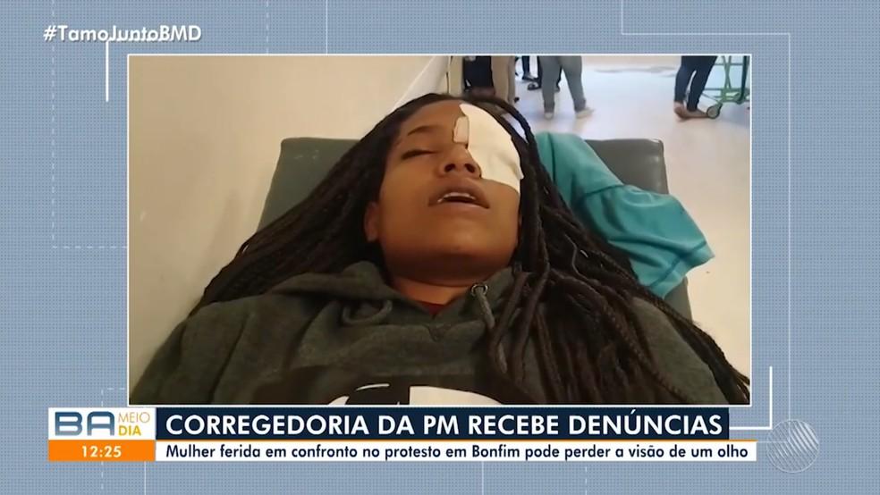 Jovem é atingida no olho por bala de borracha durante confronto entre PMs e 'espadeiros' na Bahia e pode perder visão — Foto: Reprodução/TV Bahia