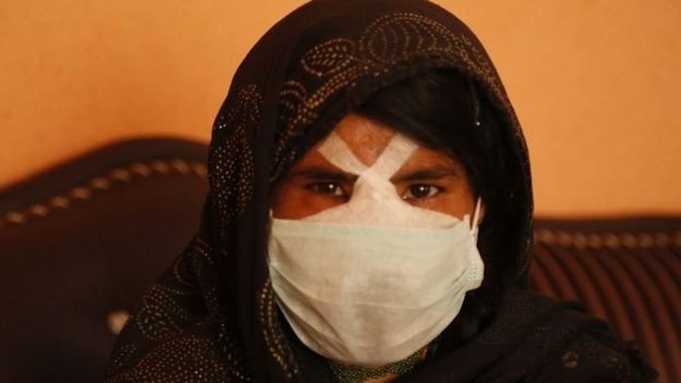 'Só queria um nariz. Nada mais', diz Zarka — Foto: BBC