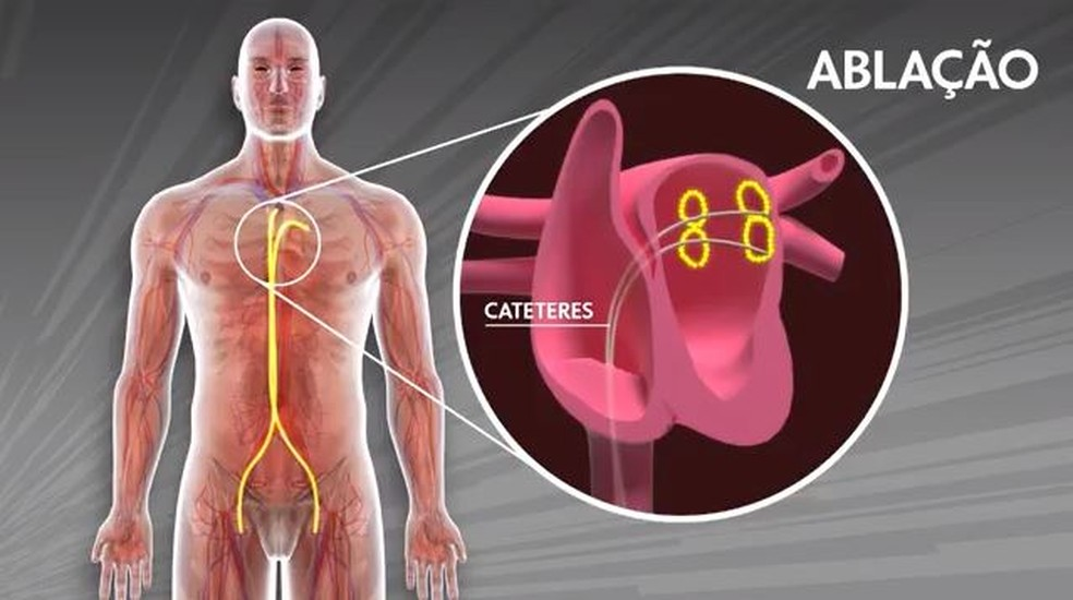 Ablação foi o método utilizado na cirurgia do treinador — Foto: TV Globo