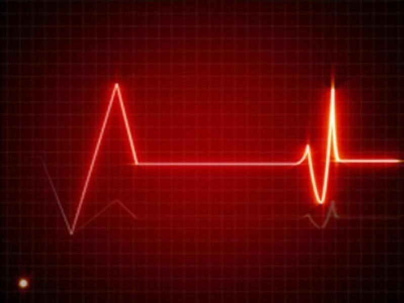 Proteção De Tela: Electrocardiogram