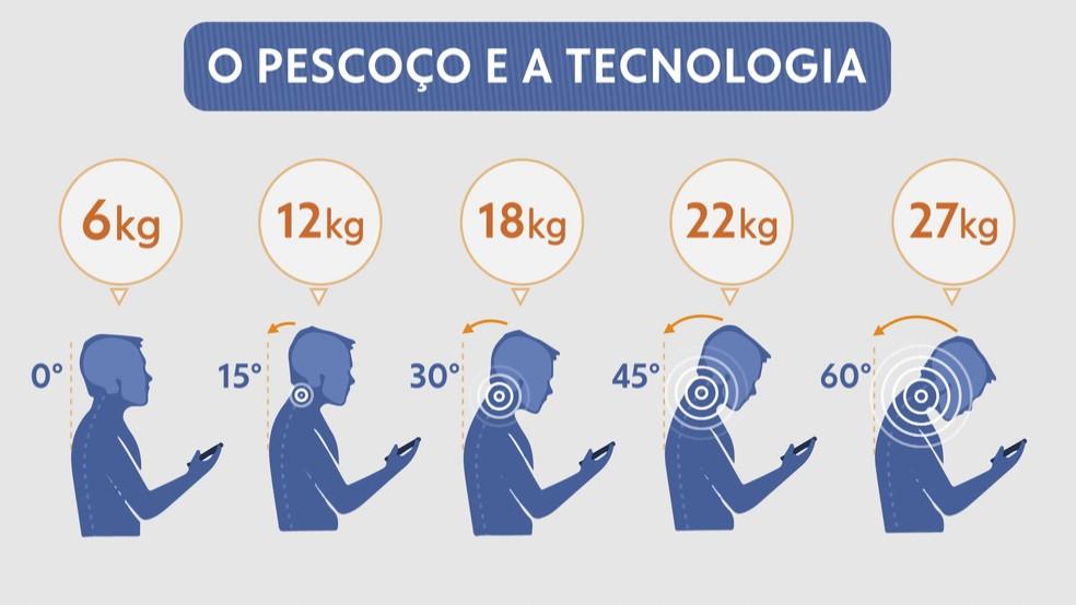 Ao se inclinar para mexer no celular, o peso da cabeça aumenta, gerando danos na coluna — Foto: Arte/TV Globo