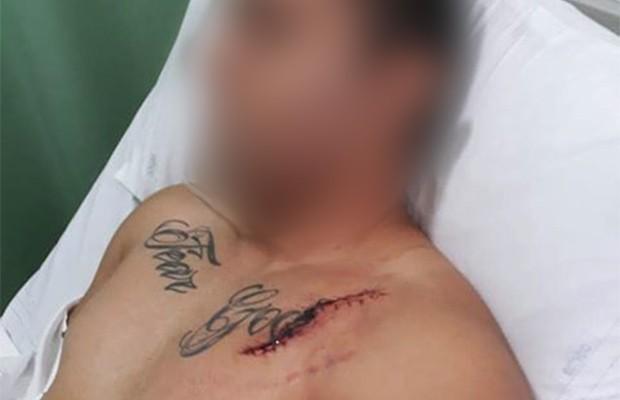 Exclusivo: primeiro acidente com vítima do caso Takata é registrado no Brasil (Foto: Arquivo pessoal)