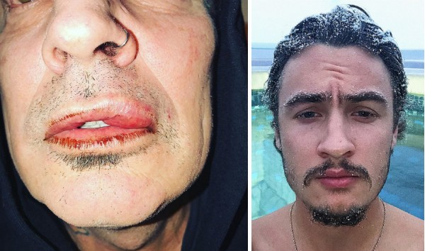 O roqueiro Tommy Lee com os ferimentos causados por seu filho de 20 anos com a atriz Pamela Anderson (Foto: Instagram)
