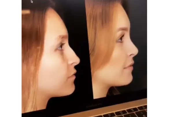 """Carla Diaz fez uma rinoplastia e compartilhou o resultado nas redes: """"Muito chocada. Chora nesse perfil"""" (Foto: Reprodução)"""
