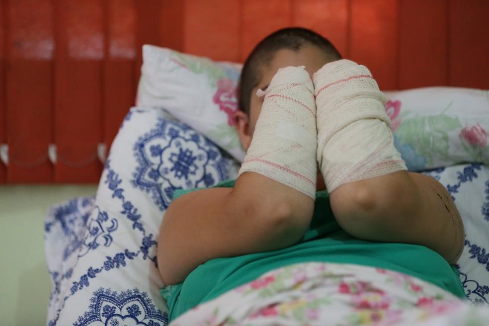 Jovem teve as mãos decepadas pelo ex-companheiro em São Leopoldo (Foto: Diego Vara/Agência RBS)