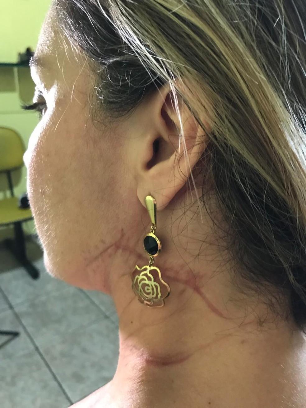 Vendedora Aline Guimarães foi esfaqueada mais de 70 vezes pelo ex-companheiro — Foto: Talita França/ TV Vanguarda
