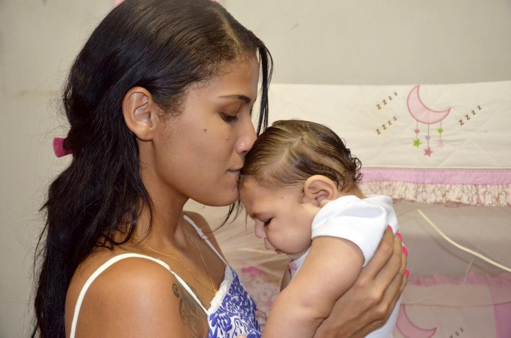 Camilla Raquel, de 22 anos, beija a filha Maria Lys, que tem microcefalia.  (Foto: Dani Fechine/G1)