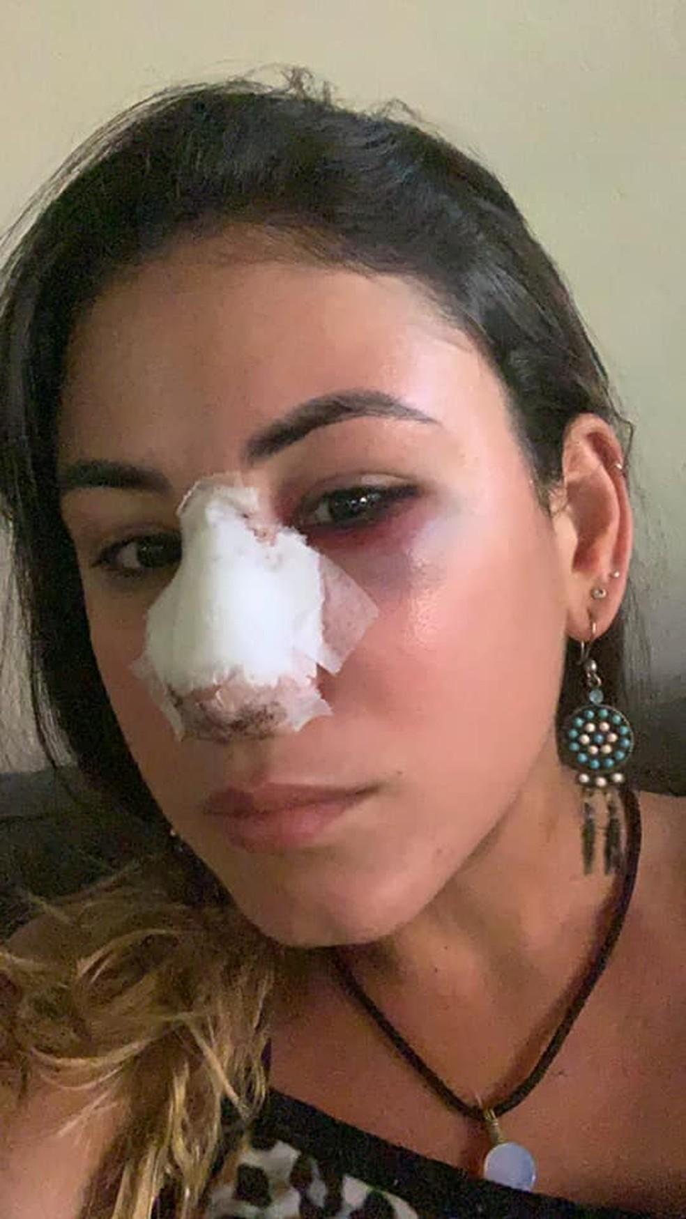 Vítima foi atingida no rosto  — Foto: Arquivo pessoal