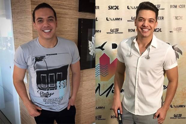 Wesley Safadão: Antes e Depois (Foto: Reprodução/Instagram)