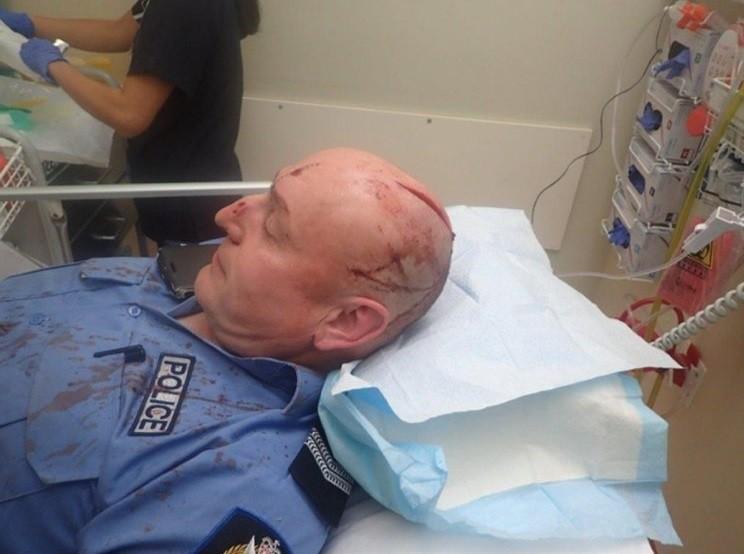 Policial ferido na cabeça com espada samurai
