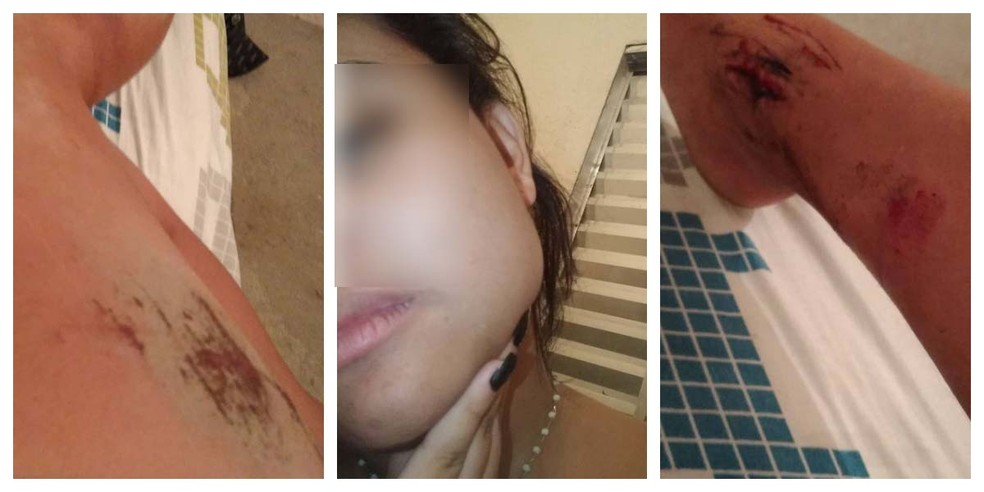 Estudante relata que foi agredida após se negar a ficar com homem e relatar que é lésbica em Cubatão (SP) — Foto: Reprodução/Facebook