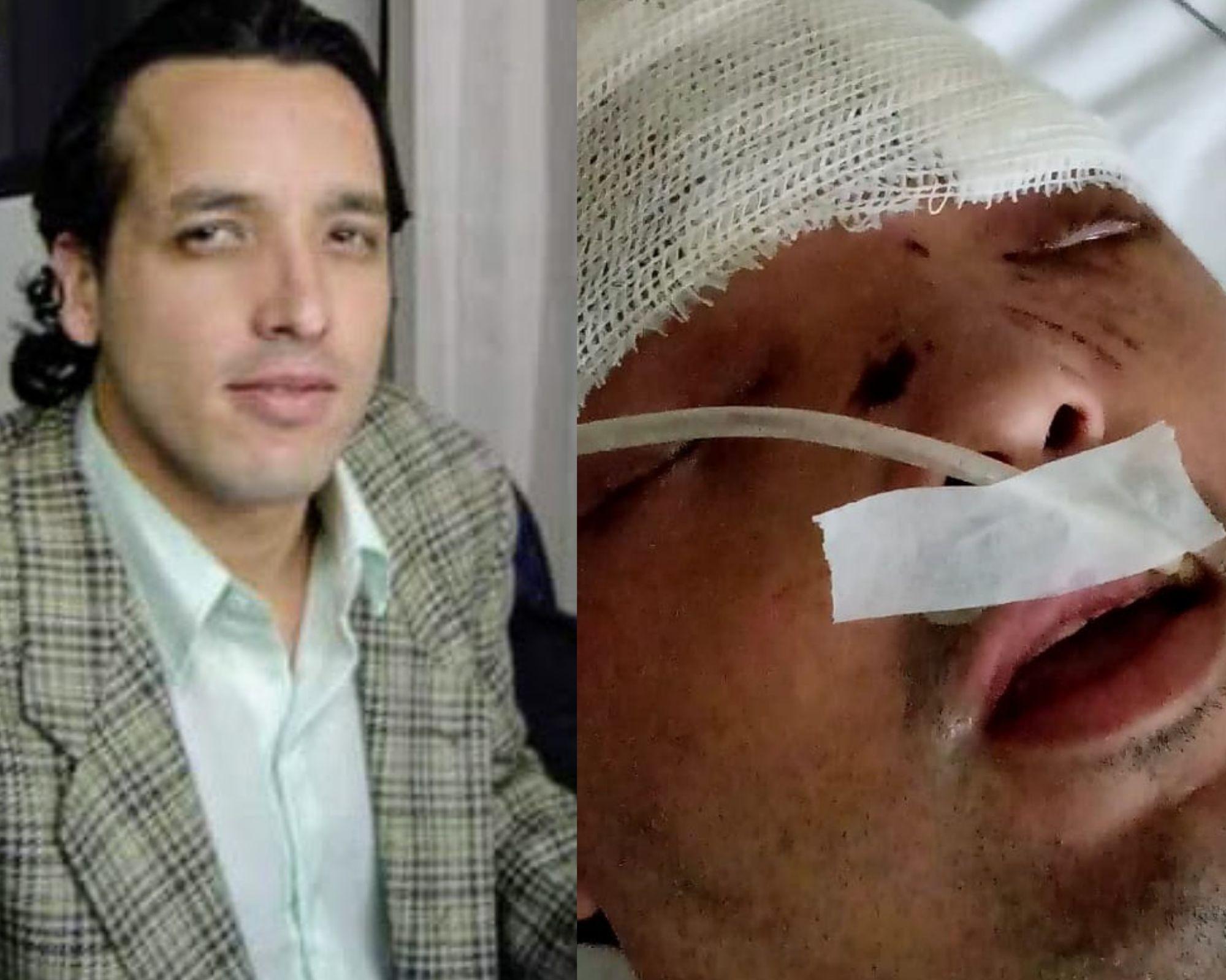 Homem tem traumatismo craniano e perde globo ocular ao ser espancado no interior de SP