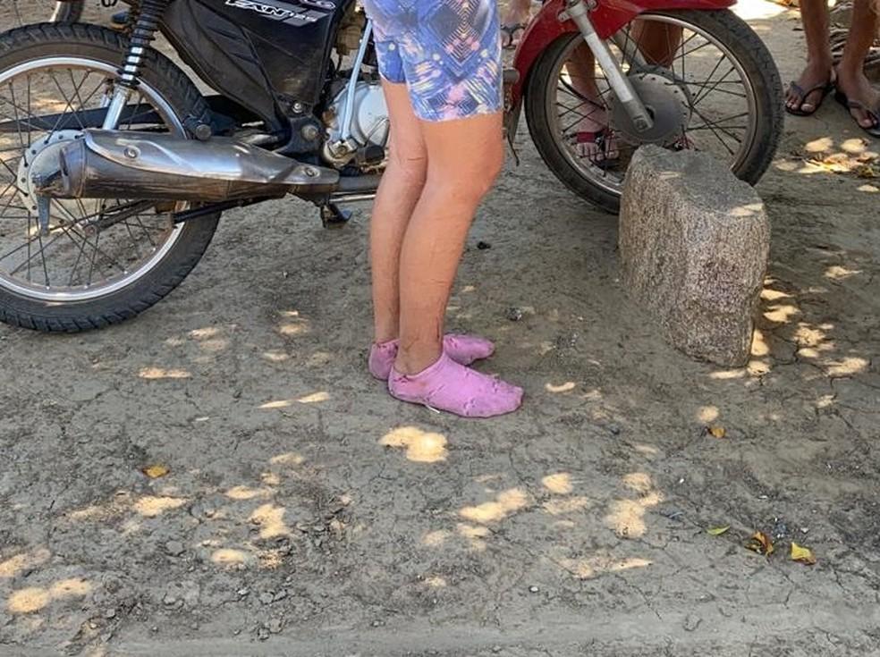 Uma das jovens estava com arranhões na perna e na região do tornozelo — Foto: Arquivo pessoal
