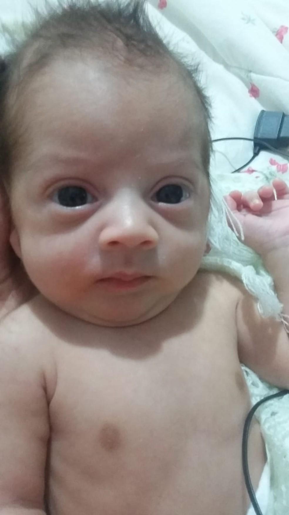 Bebê nasceu prematuro depois que mãe teve infecção pós cirurgia plástica na barriga — Foto: Arquivo pessoal