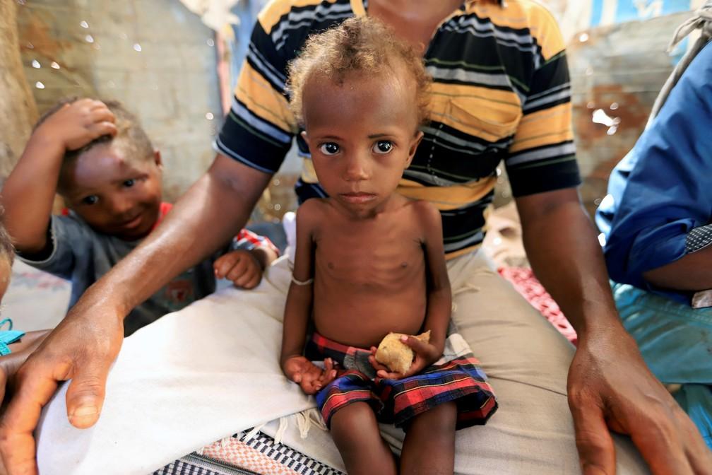 Uma menina desnutrida é vista no colo de seu pai em uma favela em Hodeidah, no Iêmen, em foto de 2019 — Foto: Abduljabbar Zeyad/Reuters