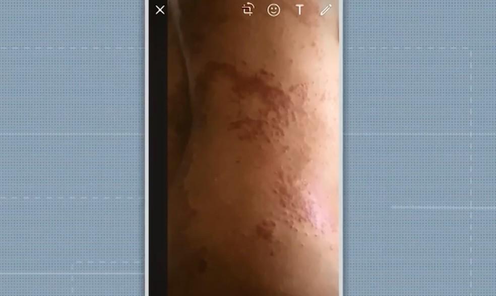 Mais de 70 pessoas são afetadas por doença misteriosa em Salvador — Foto: Reprodução/TV Bahia