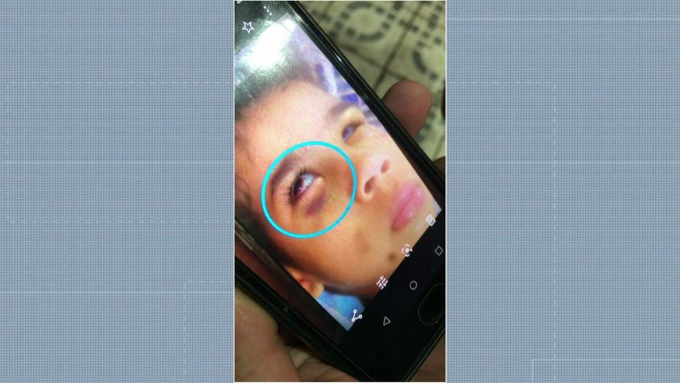 Micaelly já havia sido internada por espancamento — Foto: Reprodução/TV Globo