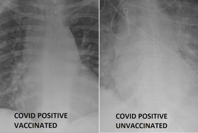 Raios X mostram diferença em casos de covid entre pacientes vacinados e não vacinados (Foto: Reprodução/ People)