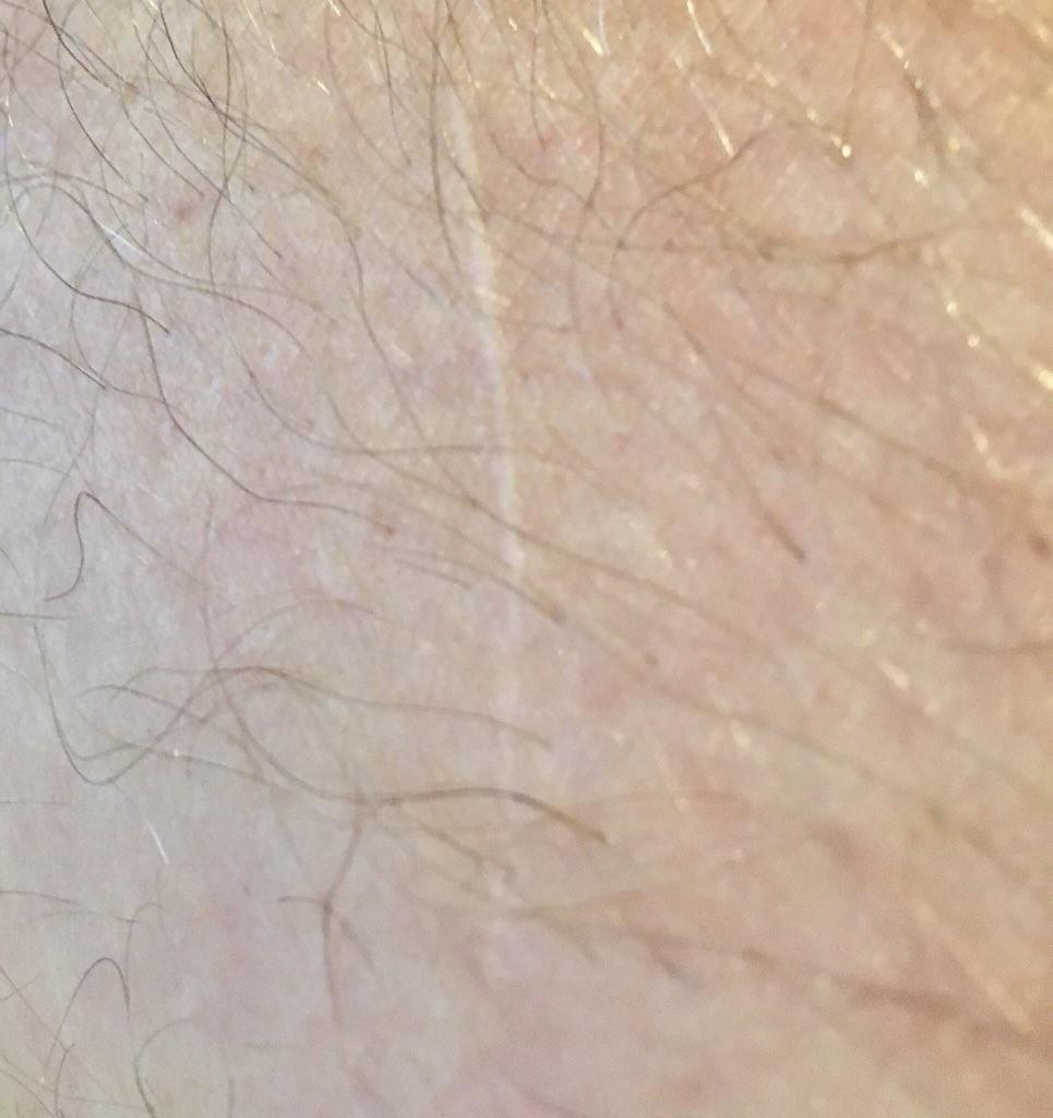 A cicatriz no braço do ator Russell Crowe decorrente de um acidente com espadas nas gravações de Gladiador (1999) (Foto: Twitter)