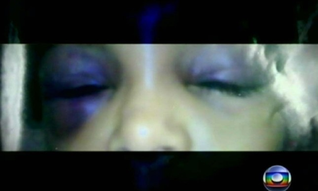 Imgem divulgada pelo MP mostra sinais de agressão a menina