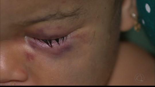 Bebê que sofreu traumatismo craniano por agressão na PB não vai ter sequelas, diz médico