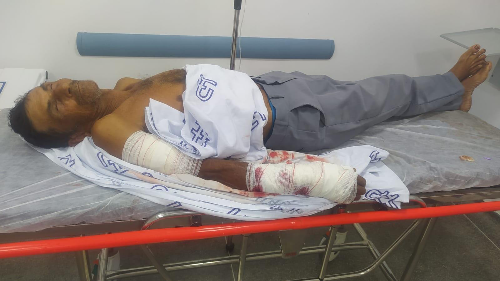 Idoso leva mais de 20 pontos no braço após ser atacado por cão da raça pitbull na Bahia: 'Já atacou e matou um cachorro'