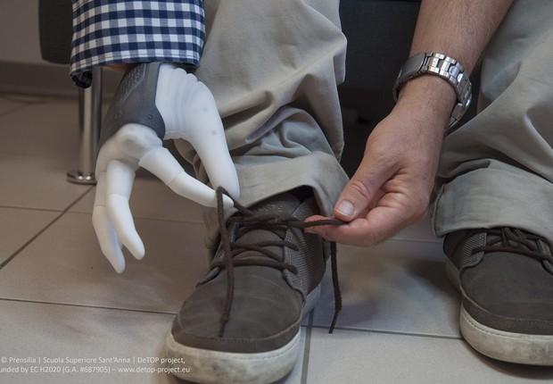 Mão biônica desenvolvida pelo projeto DeTOP (Foto: Divulgação/DeTOP)