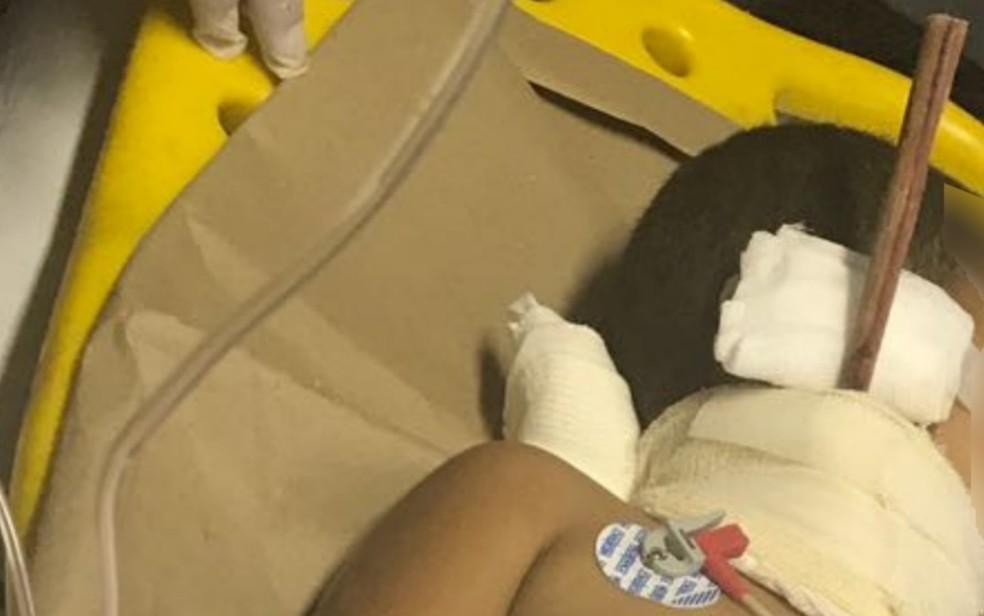 Pedaço de madeira quase atingiu o coração da criança, em Catalão (Foto: Divulgação/Corpo de Bombeiros)