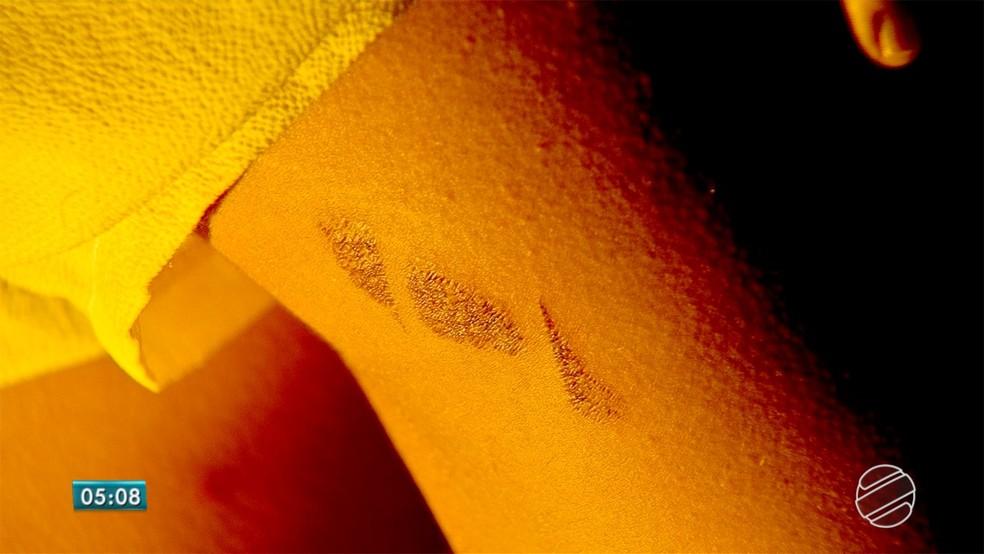 Vítima de tortura comenta agressões durante 2h30 em MS â?? Foto: Reprodução/TV Morena
