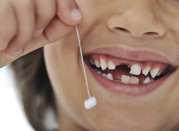 Dente; caiu; troca; dente de leite; menino (Foto: Thinkstock)