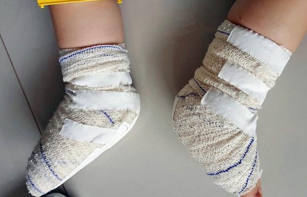 Miguel com os dois pés enfaixados (Foto: Fernanda Aguiar/Arquivo Pessoal)