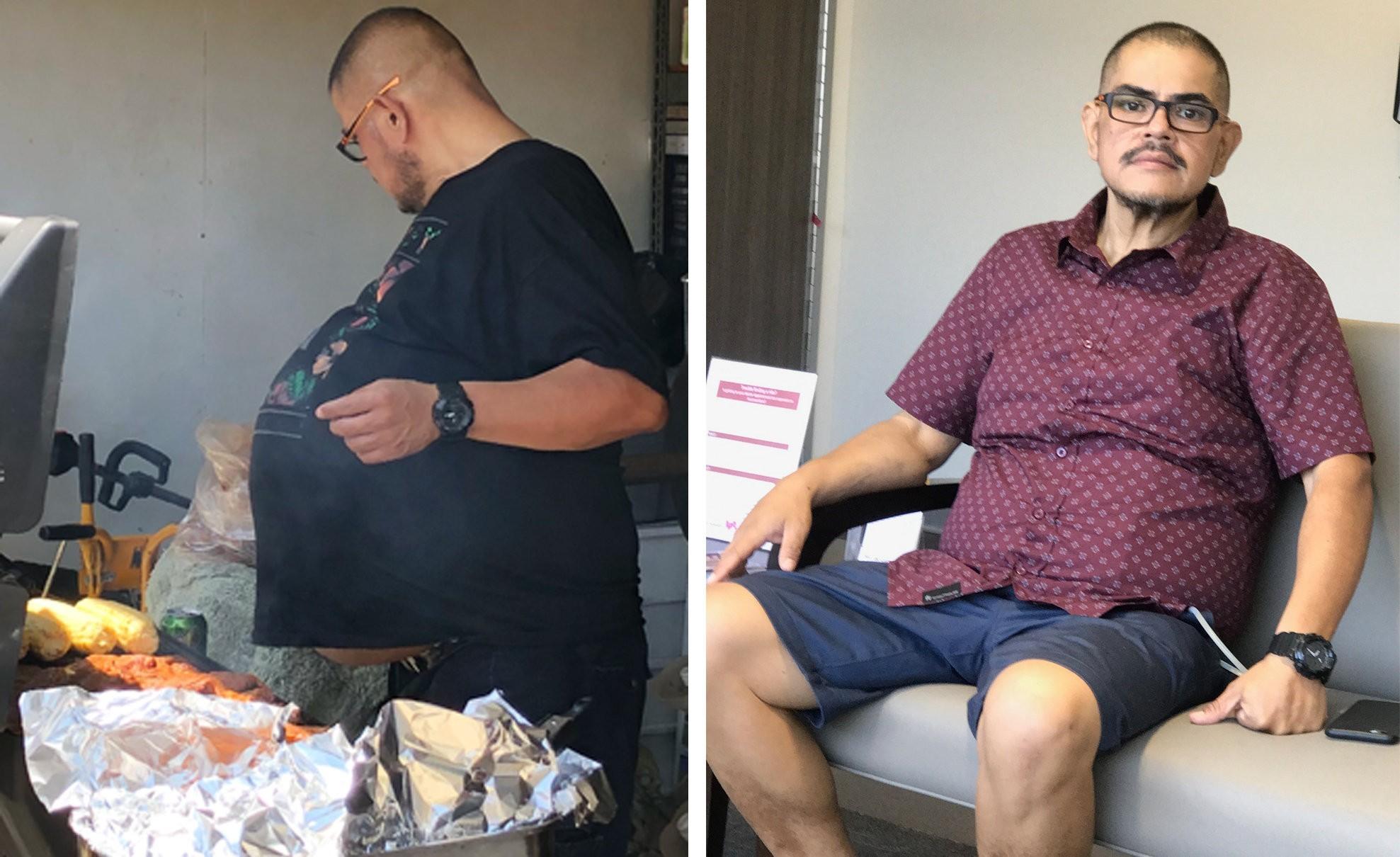 Antes e depois de Hector Hernandez. (Foto: Arquivo pessoal / Hector Hernandez)