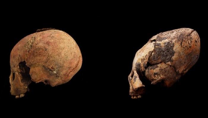 Crânios de duas crianças de oito anos de idade; não modificado (à esquerda) e modificado. (Foto: Zhang et al., American Journal of Physical Anthropology, 2019)