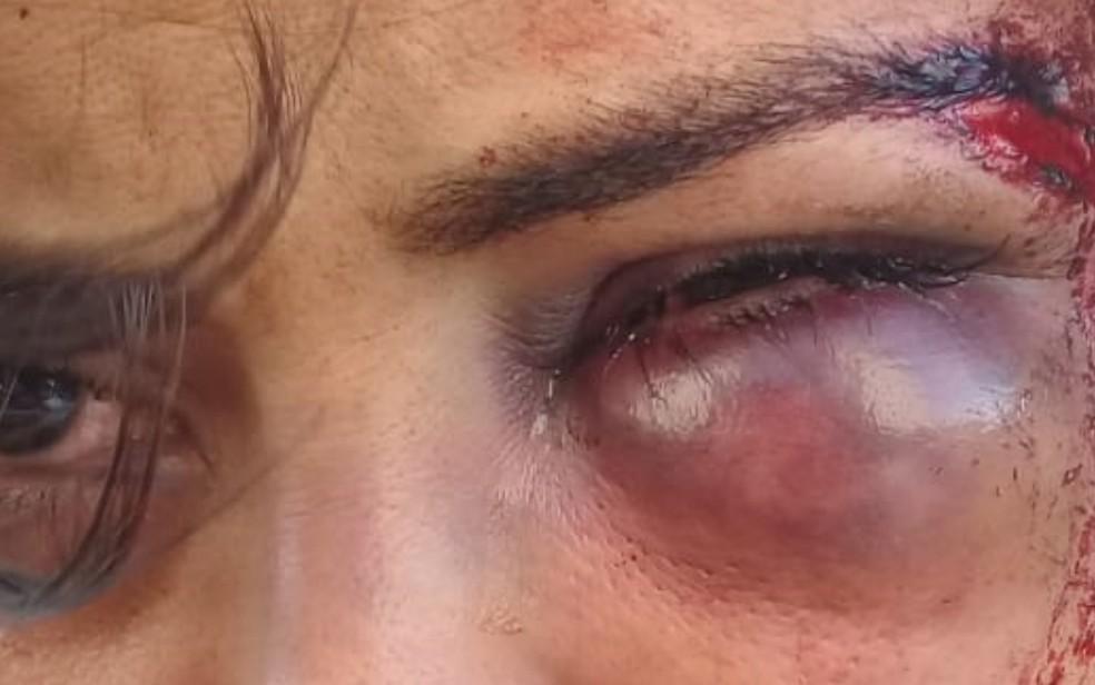 Mulher é agredida e fica com hematomas e cortes no rosto, em Valparaíso de Goiás — Foto: Reprodução/TV Anhanguera