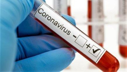 Petrolina confirma mais 83 casos de Covid-19 e totaliza 5.085