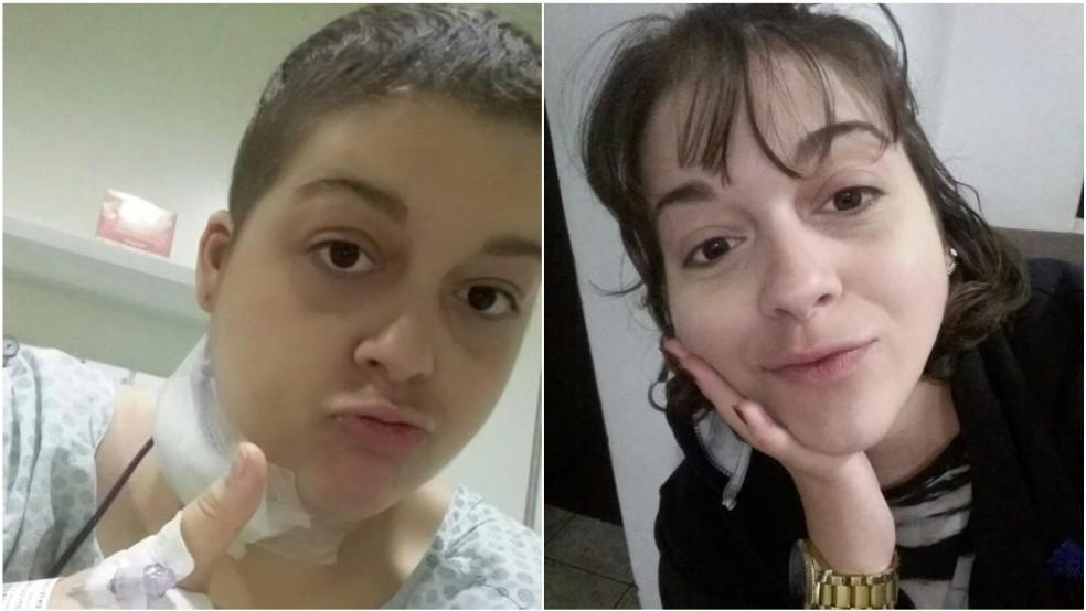 Júlia conseguiu uma bolsa de 50% do valor da universidade por causa de sua pontuação no Enem que fez durante o tratamento de câncer — Foto: Arquivo pessoal