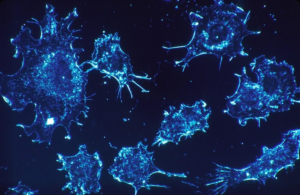 O câncer de pâncreas tem uma das mais altas taxas de mortalidade entre todos os tipos da doença. — Foto: Pixabay