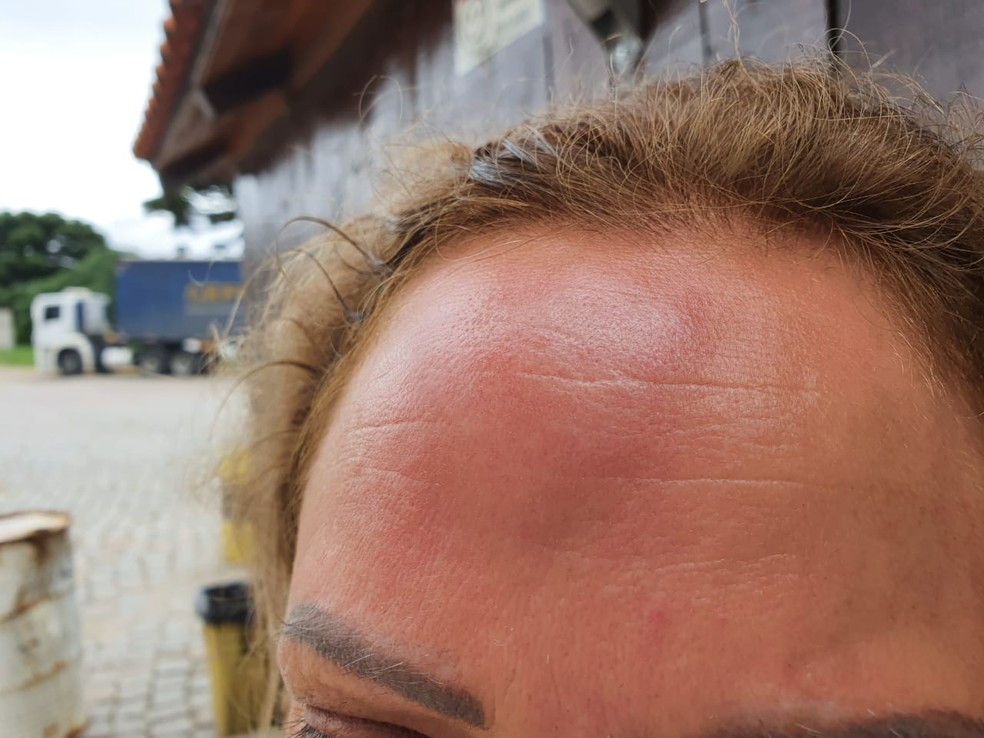 Passageiros foram feridos com coronhadas na cabeça — Foto: Wilson Kirsche/RPC