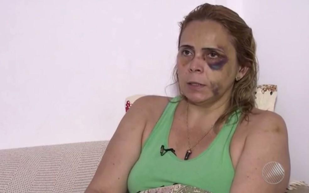 Alexandra do Nascimento denunciou que sofreu agressões do ex-namorado, o humorista Renato Fechine (Foto: Reprodução/TV Bahia)