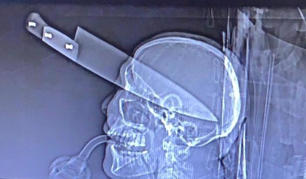 Raio-x mostra a faca cravada no olho de vítima encontrada em carro em Dourados (MS). O homem sobreviveu ao ataque — Foto: TV Morena/Reprodução