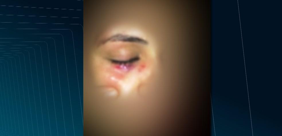 Jovem foi agredida com um soco no rosto, após o rapaz ter insistindo para que ela dançasse com ele, contra a vontade dela (Foto: Reprodução/TV Paraíba)