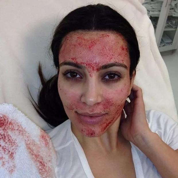 Kim Kardashian revela seu maior arrependimento estético (Foto: Reprodução/KKW.com)