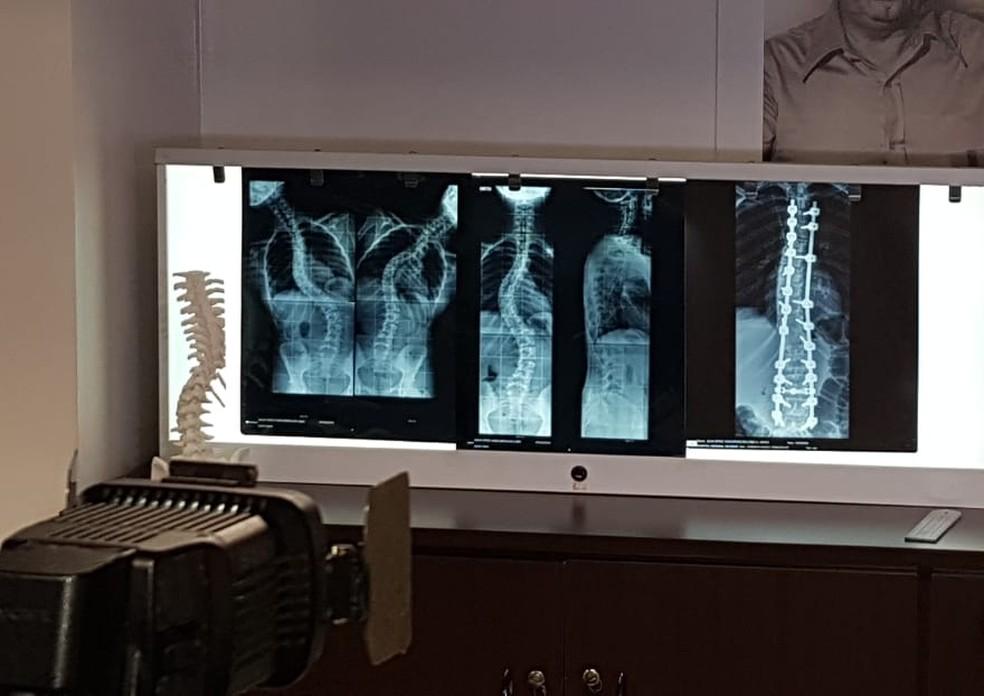 Protótipo de coluna desenvolvido no hospital — Foto: Edu Vial/AI HRO