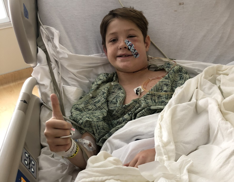 Xavier Cunningham está se recuperando no hospital após passar por cirurgia para remoção do objeto que atravessou sua cabeça — Foto: Shannon Miller/ Family Photo/ AFP