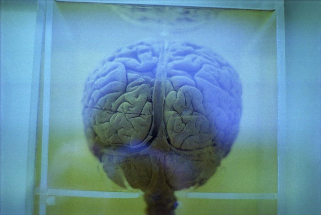 Apesar dos enormes avanços recentes, a doença de alzheimer ainda permanece incurável (Foto: Meg Sharp/ Flickr)