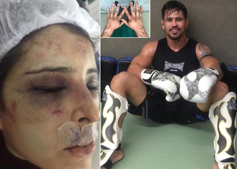 Lutador agrediu a namorada neste domingo (18), em Campos dos Goytacazes, no RJ — Foto: Inter TV RJ / Reprodução
