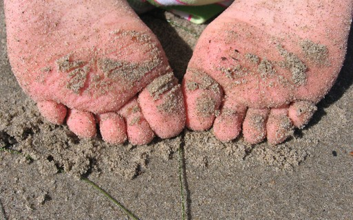 Após viajar ao Brasil, menina de 10 anos sofre com infecção grave nos pés