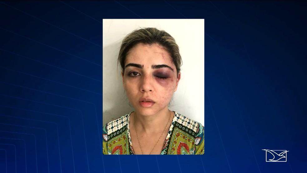 Ludmila Rosa Ribeiro da Silva foi agredida pelo ex-marido em Pinheiro e São Luís. (Foto: Reprodução/TV Mirante)