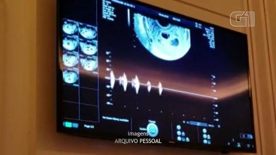 Mulher que descobriu gravidez após suspeita de tumor no útero dá à luz quíntuplos no Paraná