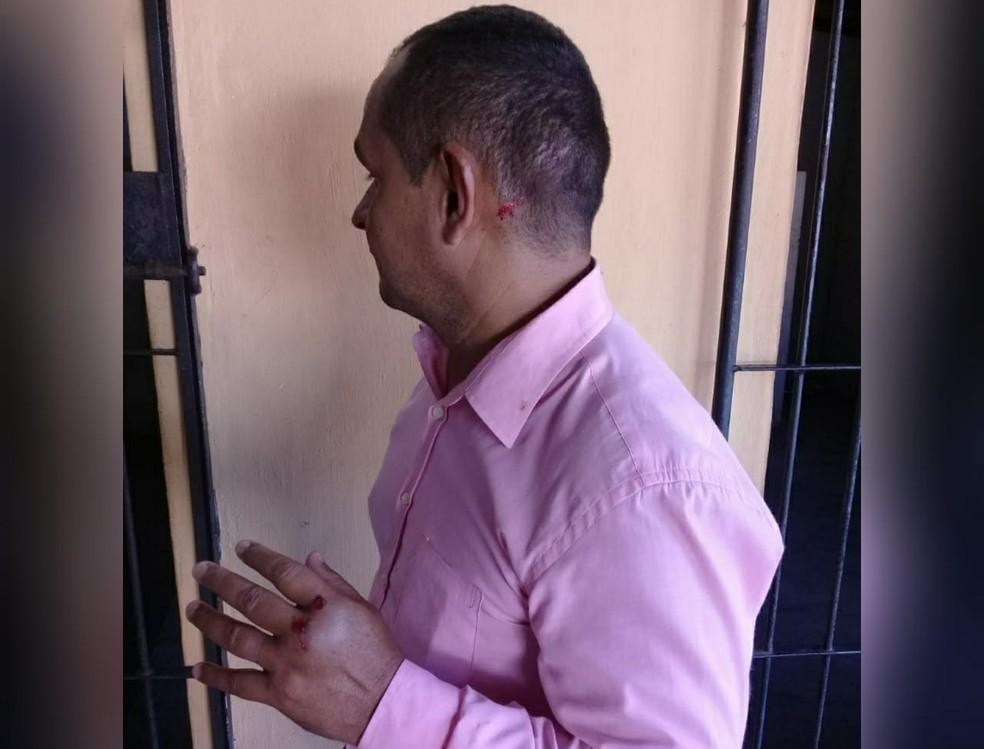 -  Advogado que sofreu alguns ferimentos após ser atacado com terçado foi até a delegacia registrar boletim de ocorrência  Foto: Marcelo Leitão/Arquivo